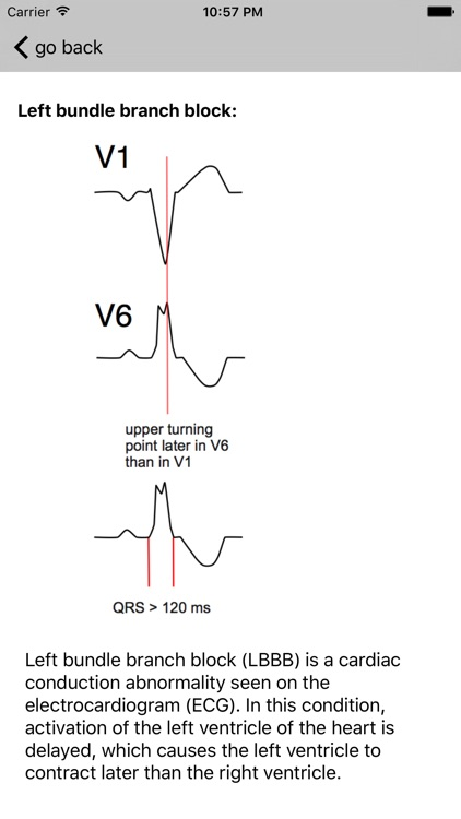 Learn ECG screenshot-1