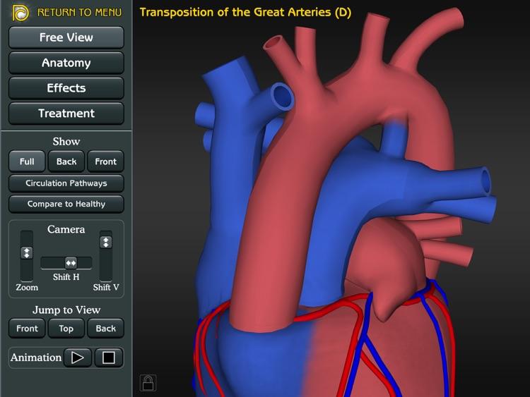 3D Road Map to Congenital Heart Disease screenshot-3