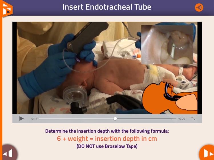 Neonatal Airway screenshot-4