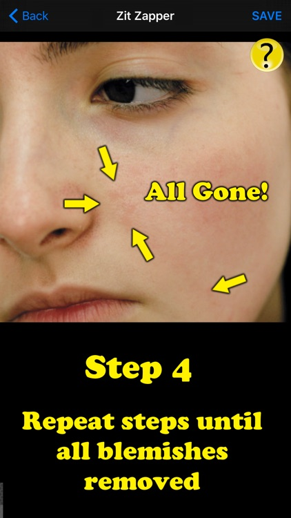 Zit Zapper Pro - Acne Remover screenshot-4