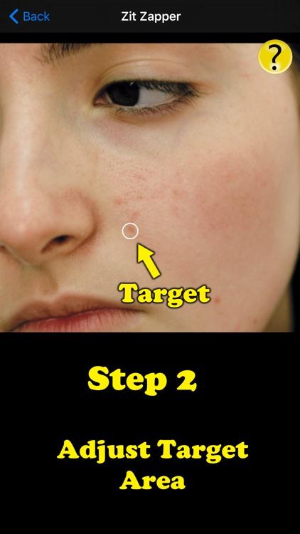 Zit Zapper Pro - Acne Remover