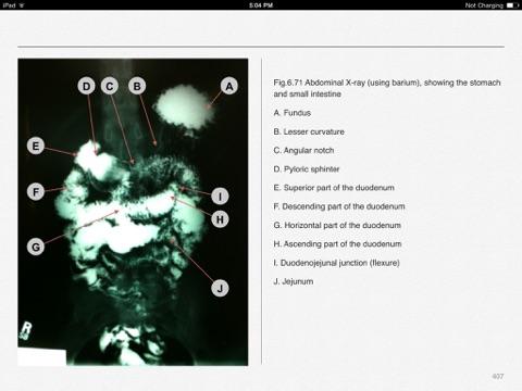 Photo atlas of anatomy by volodymyr mavrych on ibooks screenshot 3 ccuart Choice Image