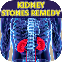 A+ Facts Of Kidney Stones - Best Guide To Find Out Kidney Stone Symptoms, Signs, Causes, Pain, Treatments & Natural Remedy