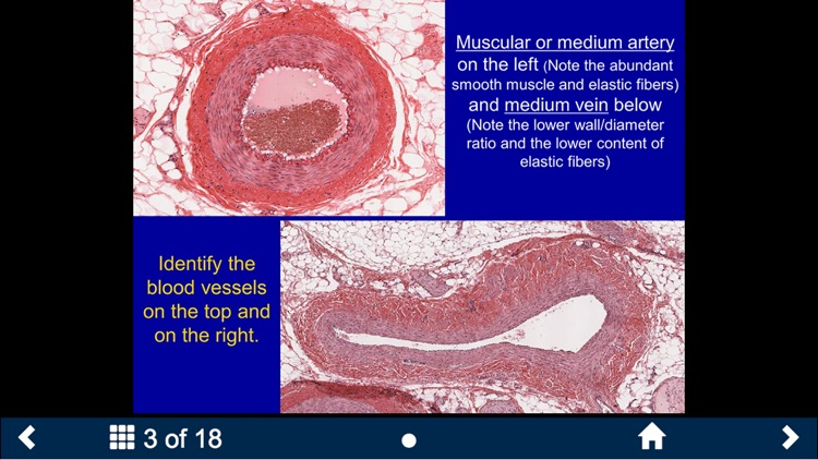 Histology - Cardiovascular and Lymphatic System