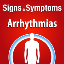 Signs & Symptoms Arrhythmias