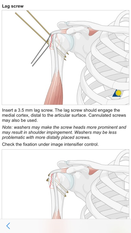 AO Surgery Reference screenshot-4