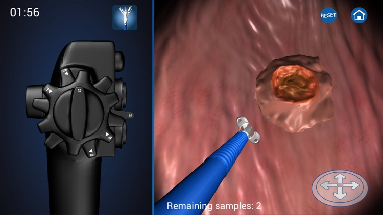 Endoscopy 3D screenshot-3