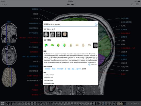 IMAIOS e-Anatomyのおすすめ画像3