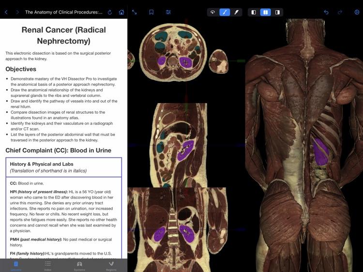 VH Dissector Pro screenshot-5