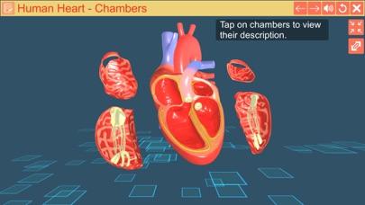 Cardiac pacemaker screenshot 4