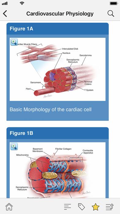 STS Cardiothoracic Surgery screenshot 2