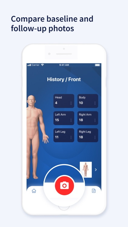 AI Dermatologist: Skin Scanner screenshot-3