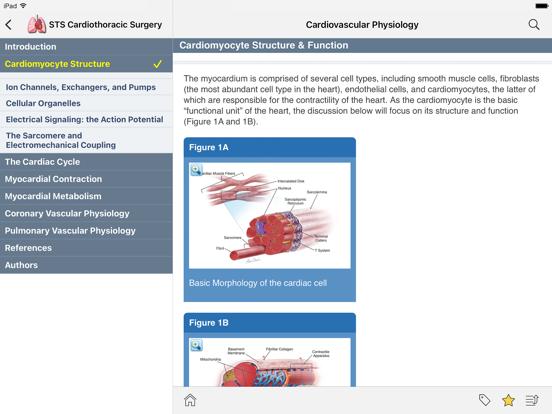 STS Cardiothoracic Surgery screenshot 9