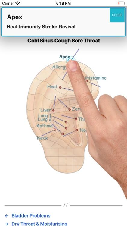 Auricular Acupuncture screenshot-4