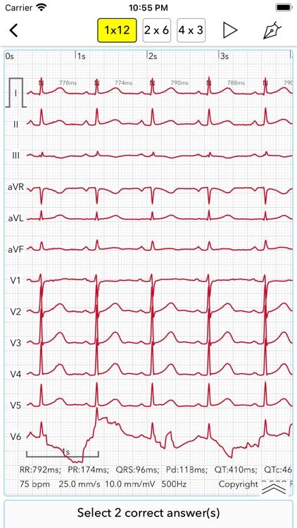 ECG Test Pro screenshot-8
