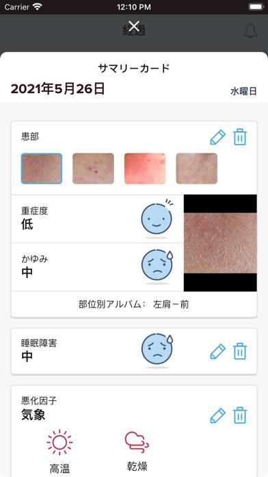 アトピー管理アプリ - イージートラック紹介画像2